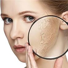 heals damaged skin