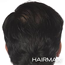 HairMax Laser Stimulation