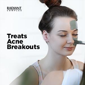 Treats Acne Breakouts