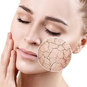 Moisten skin