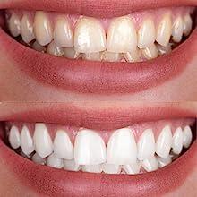 Amazon Com Upper Lower Custom Dental Teeth Whitening Bleaching Trays Tooth Whitening Products Beauty