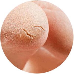 Dry Skin amp; Cracked