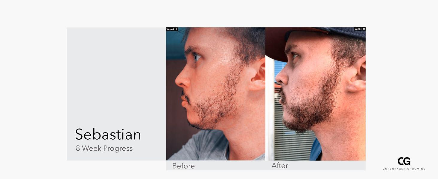growth journey with beard growth kit