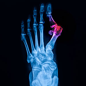 Bone Abnormal