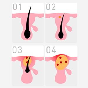 ニキビの原因は毛穴の炎症