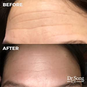 dr song, dr song hyaluronic acid serum, hyaluronic acid serum, anti-aging serum, anti-aging