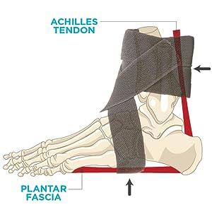the braceability ankle brace compresses the achilles tendon and plantar fascia