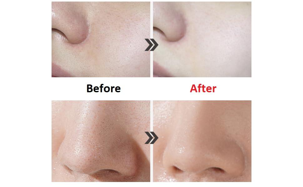 pore, blackhead, whitehead, deep cleansing, whitening, foam cleansing, face wash, face cleansing