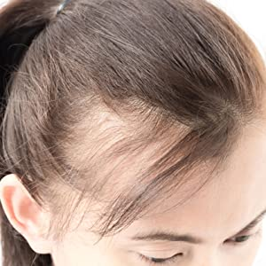 sai zen, anti thinning, anti aging, hair loss, treatment, hair thinning, DHT, cancer, volume