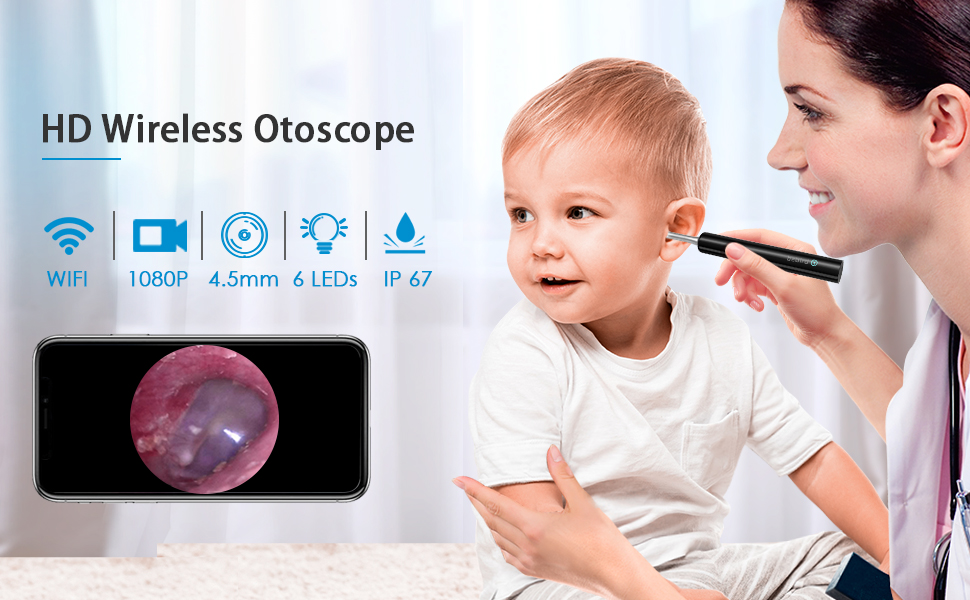 Wireless Digital Otoscope White Compatible with Android iOS Smartphone and Tablet Super Light Ear Wax Remover Tool with Temperature Control Chip LOFTer Upgraded 3.9mm 1080P FHD Ear Camera Set