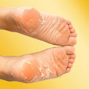 callus remover foot mask