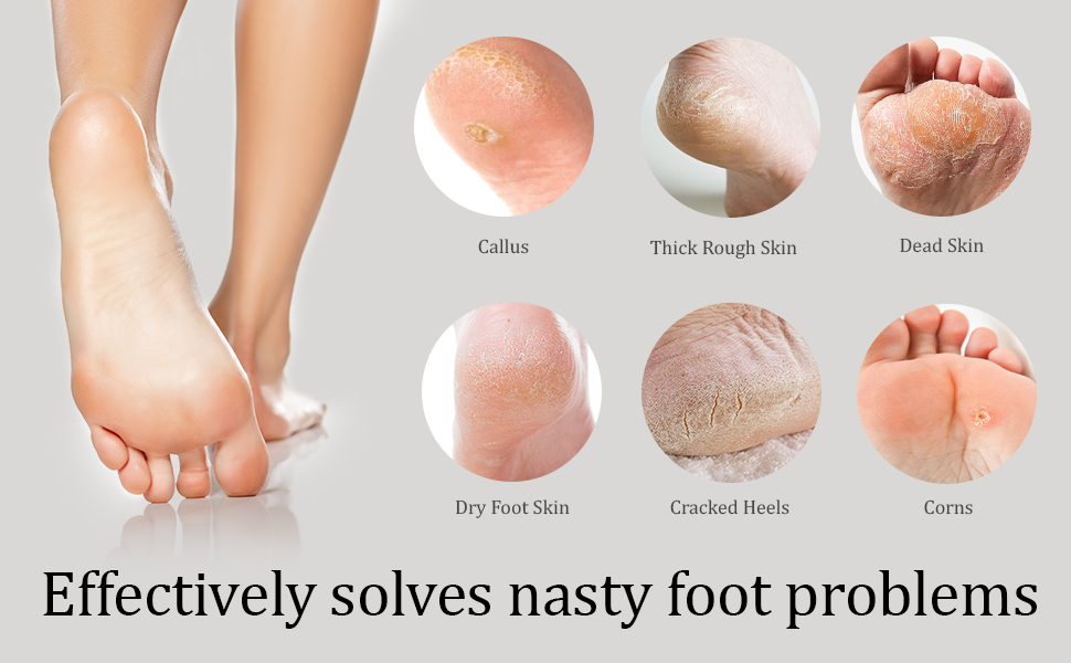 pumice stone for foot problems