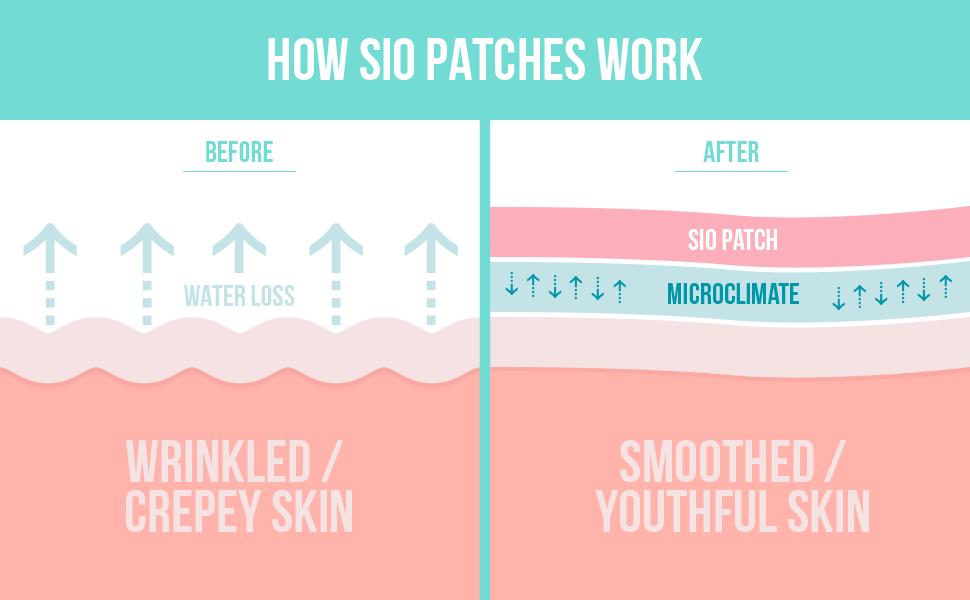 EBC_How Patches Work