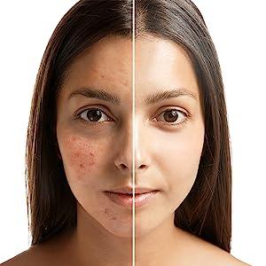 dead sea mud, exfoliate, increases circulation, strengthens skin, moisturizes, tones, antioxidant