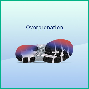 Overpronation