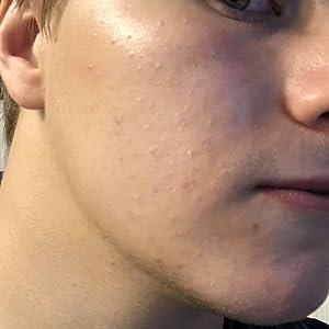 jomo acne serum