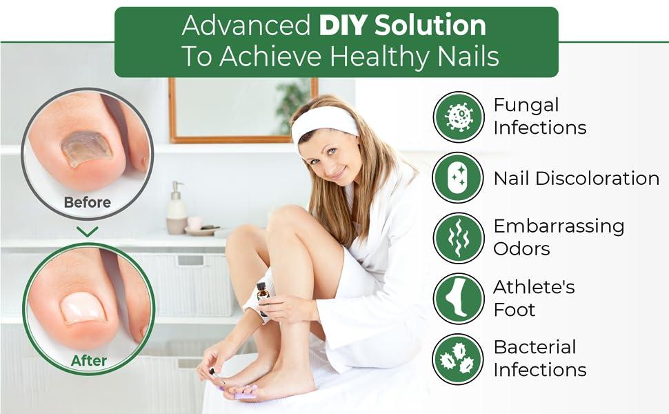 Extra Strong Nail Fungus Treatment