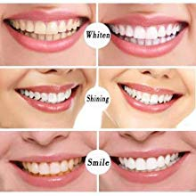 Whiten your Teeth, Shining your Smile