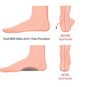 soul insoles for pronation and plantar fasciitis