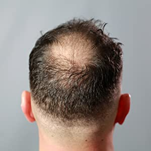 Ansatz abgebrochene haare kaschieren am Abgebrochene Haare