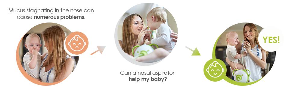 Nosiboo Pro Aspiratore Nasale Elettrico