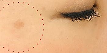 美容液 びようえき 人気 ランキング 美白 シミ くすみ 黒ずみ クマ そばかす スキンケア 保湿 顔 美容 皮膚科 エステ スポット 乾燥 肌荒れ ハイドロキノン 敏感肌 ビタミンC エイジングケア