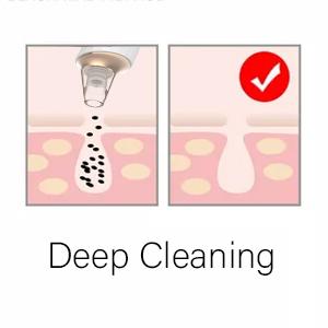 pore vacuum