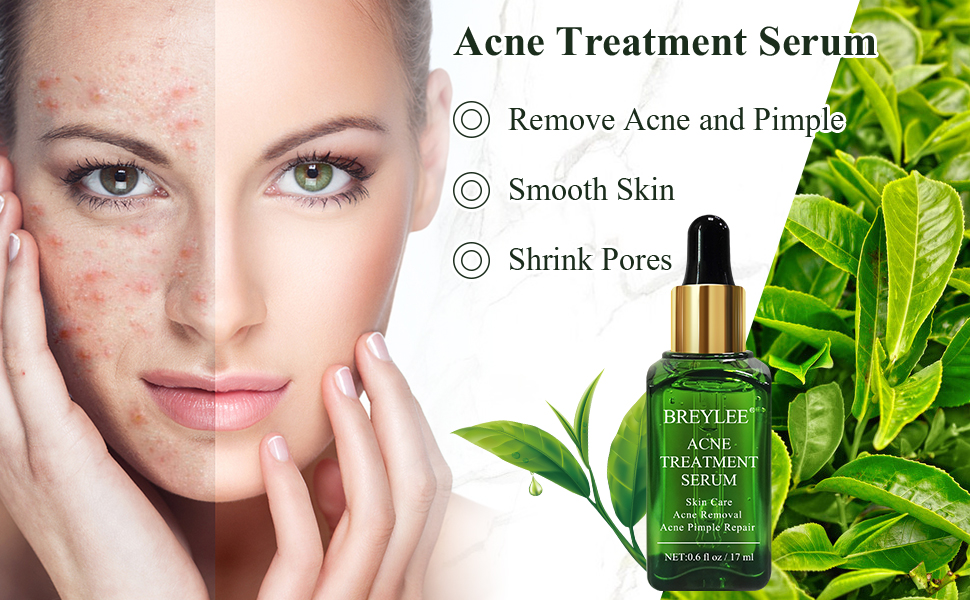 Acne Treatment Serum