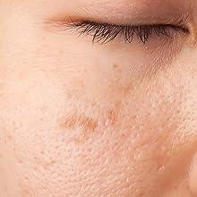 macchie della pelle segni nei impurità couperose