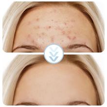 acne needle set
