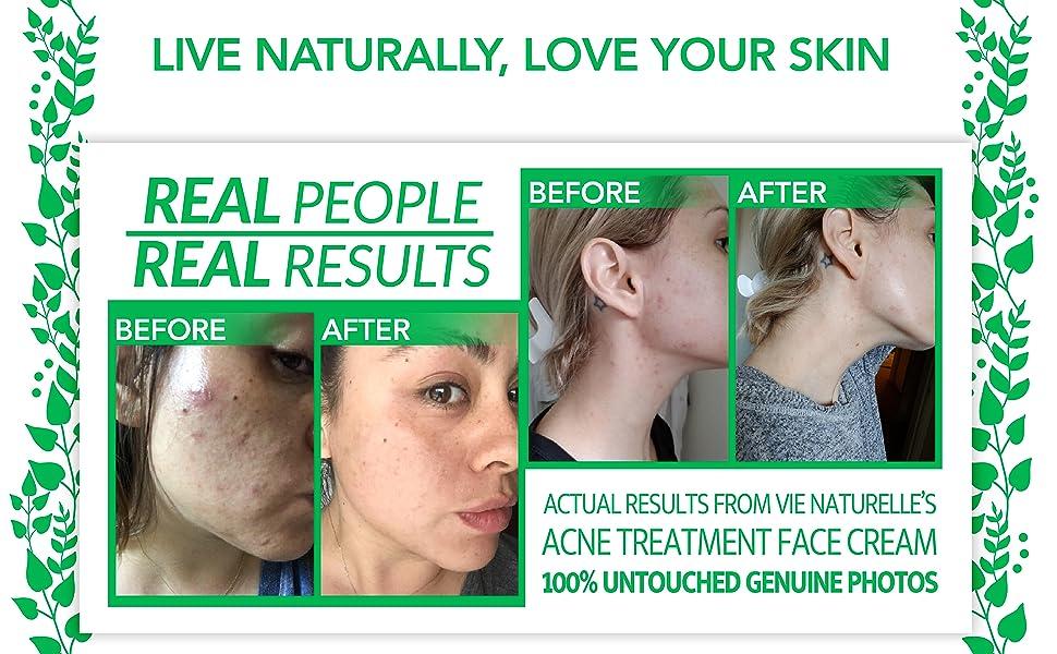 Acne Treatment Cream 5% Benzoyl Peroxide Spot Treatment Acne Cream Cystic Spot Treatment for Face