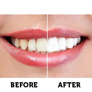 Amazon Com Active Wow Teeth Whitening Charcoal Powder Peppermint Beauty