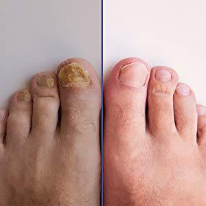 mycose des pied