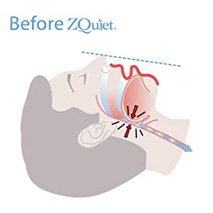 Before ZQuiet. Airway narrowing and airflow being partially blocked.