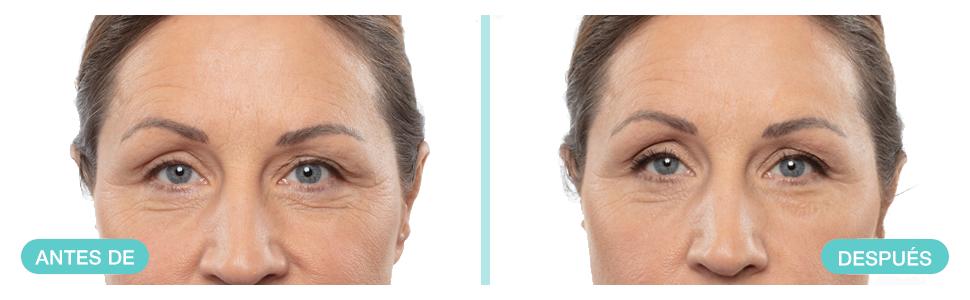 Remescar - Corrector de arrugas al instante - Probado clínicamente - Reducción de las arrugas y de los signos relacionados con la edad - Crema ...