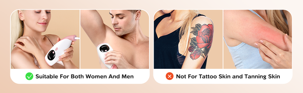hair removal device for man and women