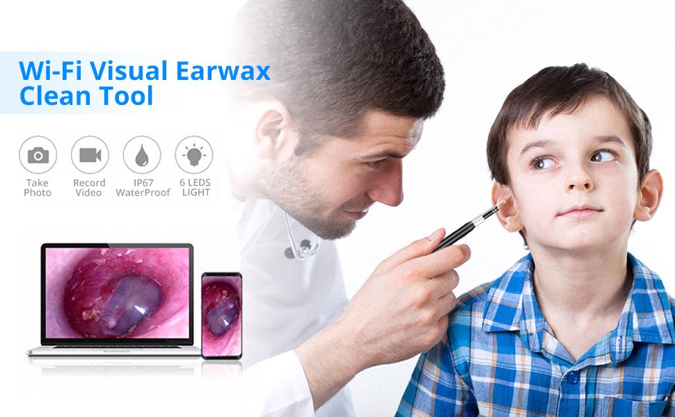 Otoscope / Ear endoscope