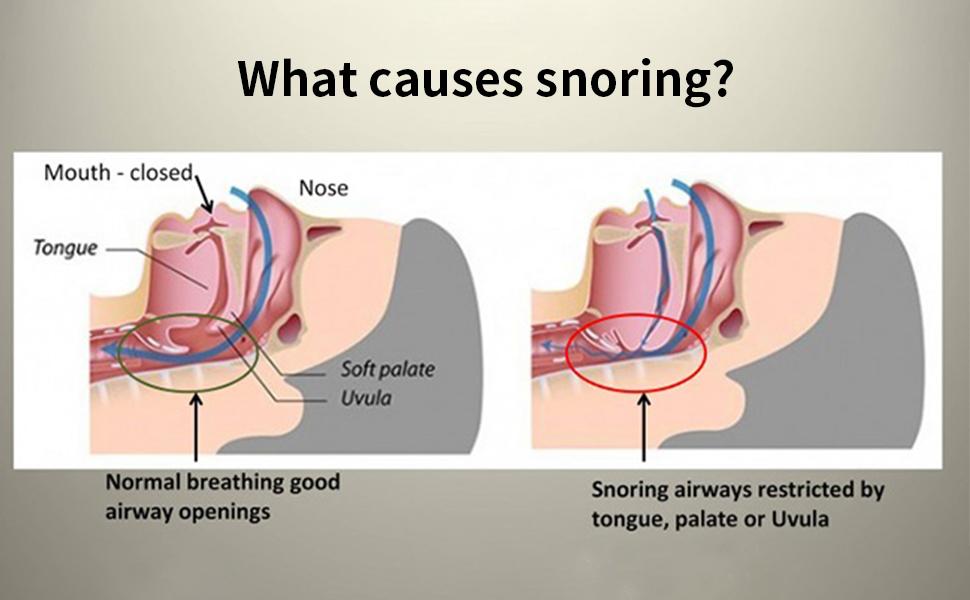 Amazon.com: Anti Snoring Devices, Snoring Solution Device Smart ...