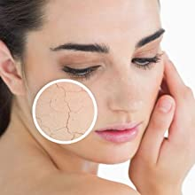 dry itchy damaged irritated skin relief