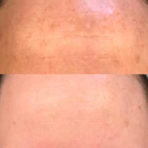 melasma on forehead