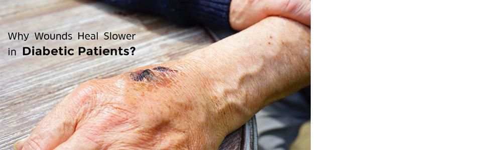 diabetes wound care
