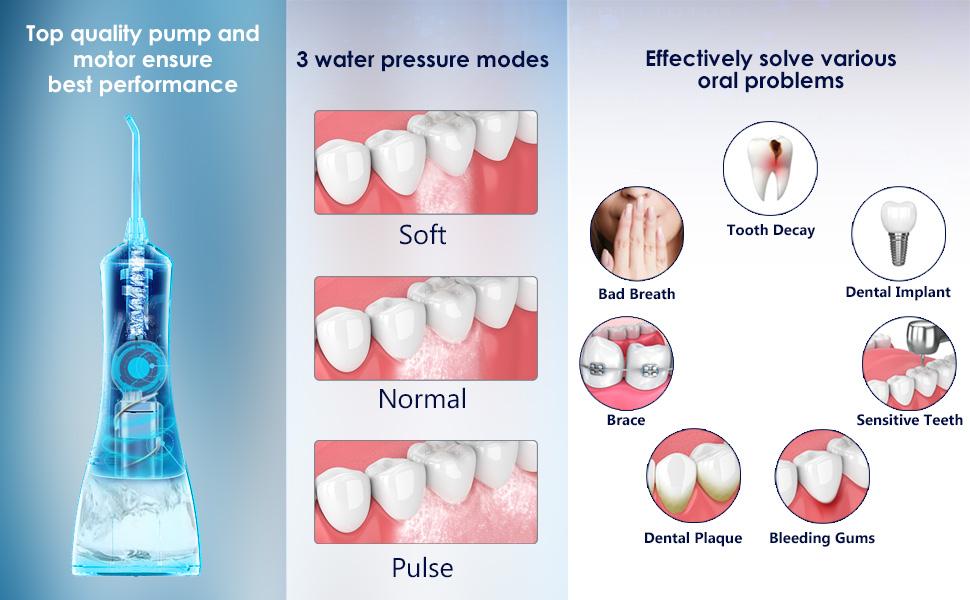 water pick teeth cleaner