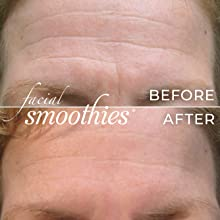 forehead, wrinkles, wrinkle remover, botox alternative, anti-wrinkle, wrinkle patches, smoothies