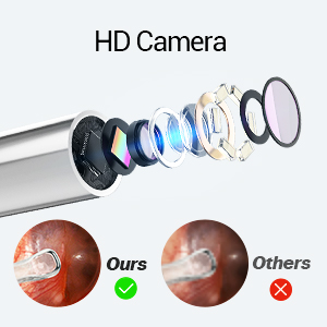 ear cleaning camera