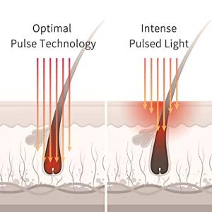 Ground-Breaking Optimal Pulse Technology