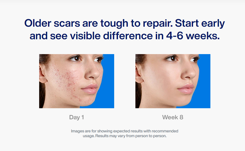 Reequil Pitstop Gel for Acne Scars Removal and Acne Pits Removal