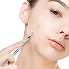 acne tools extractor kit