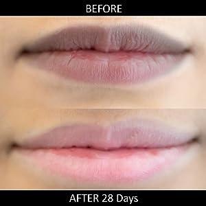 lip balm for dark lips