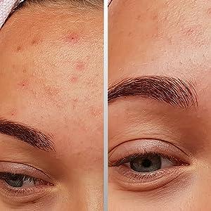 Jomo acne treatment