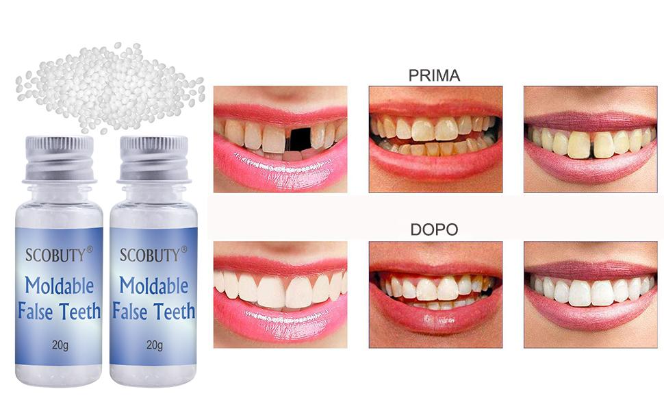 Dente Provvisorio